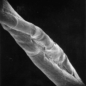 microscopic picture of cotton